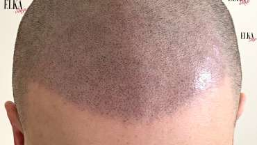 SMP For Baldness