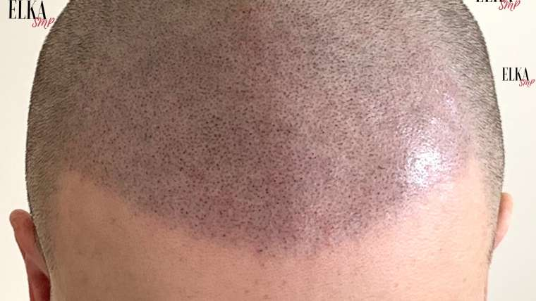What to Look for in Scalp Micropigmentation Before & After Photos?