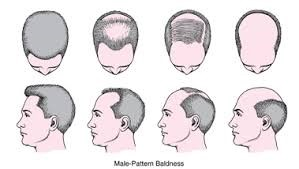 Causes of Hair Loss and Available Treatments
