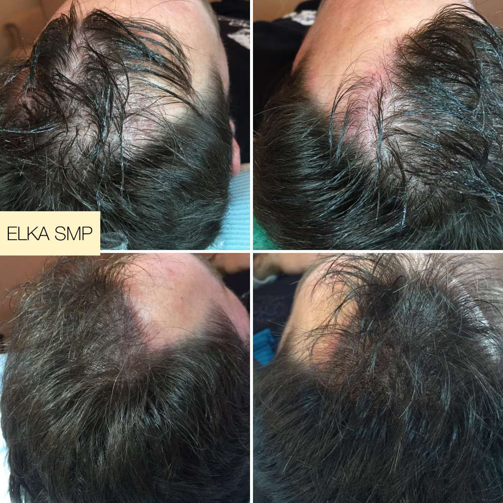 Showing Effectiveness of Scalp Micropigmentation / Hair Tattoo for Thinning Hair
