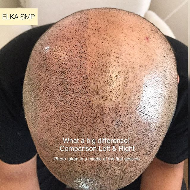 Scalp Micropigmentation : 4 Groups that can enjoy Its benefits the most
