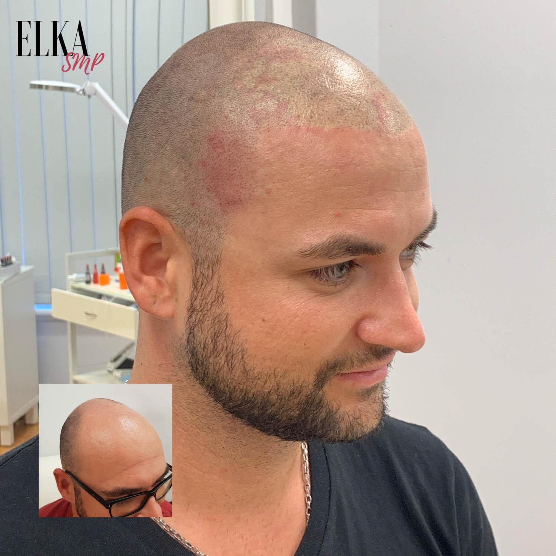 scalp micropigmentation by ELKA SMP