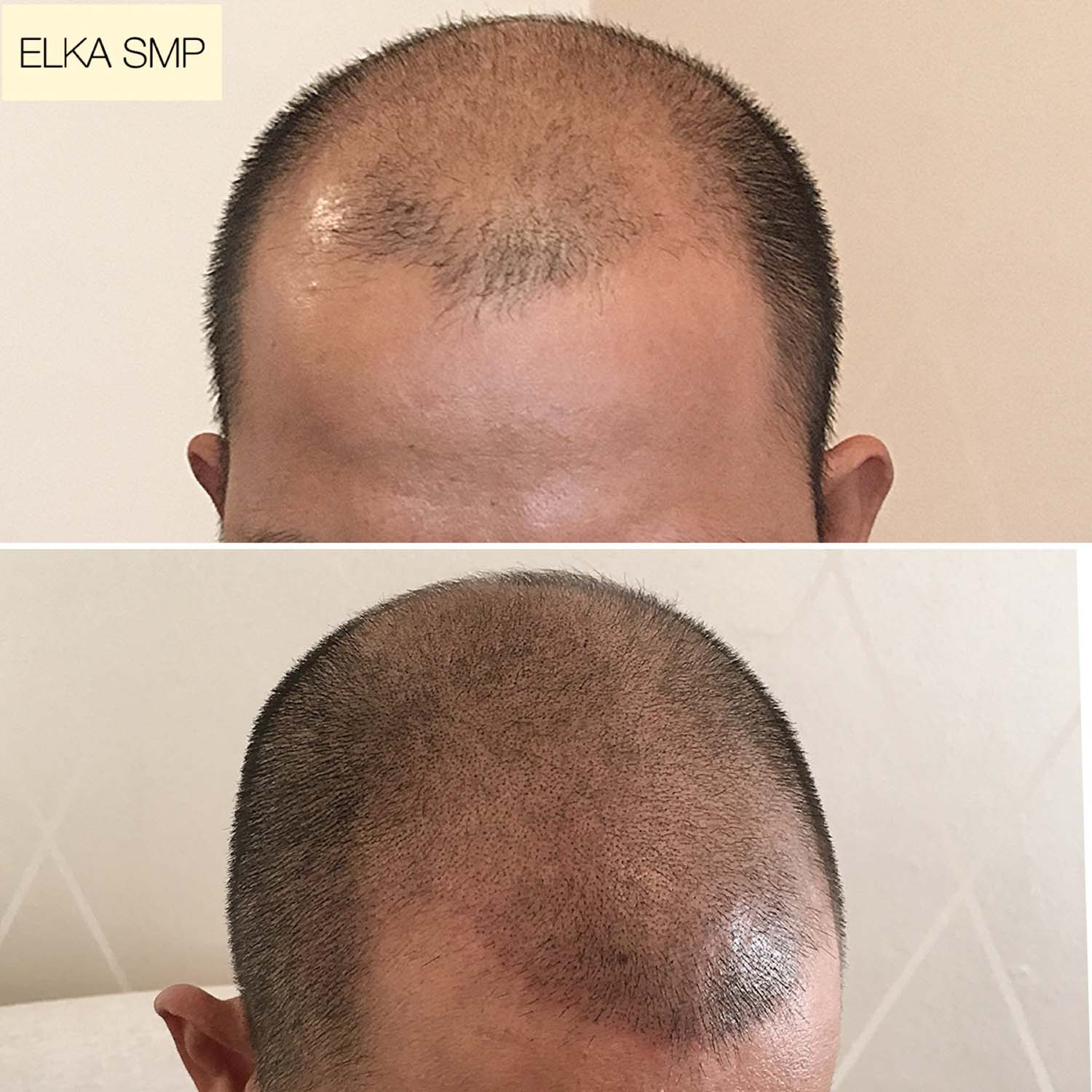 SMP by Elka clinic