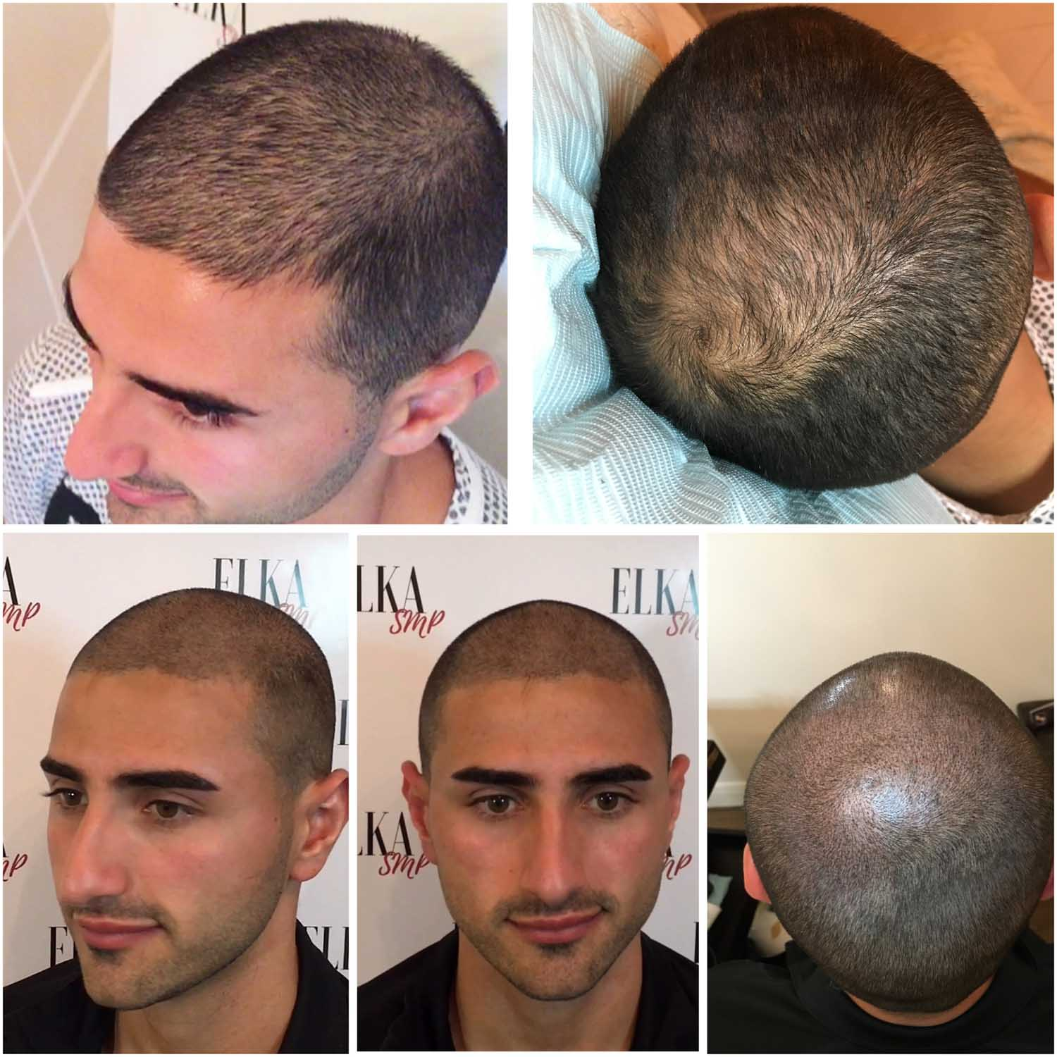 scalp micropigmentation before and after results