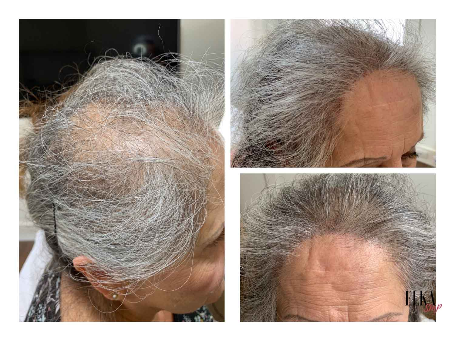 female scalp micropigmentation before and after results