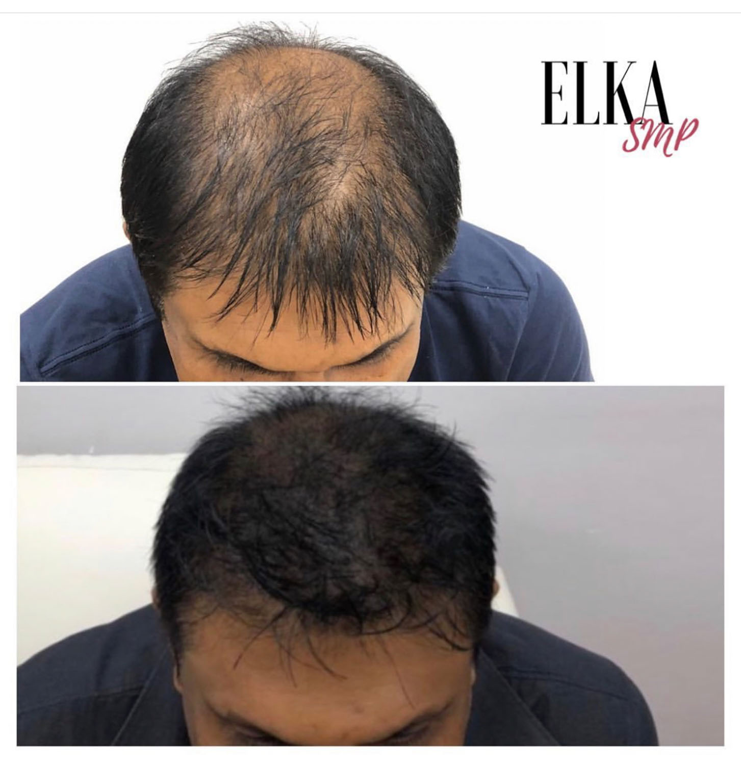 SMP for Crown Baldness