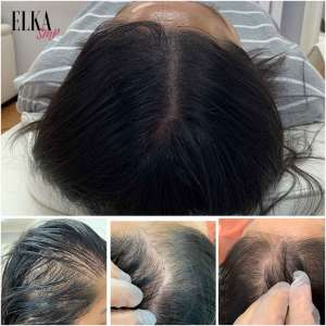 Hair Tattoo can be done on people with long hair