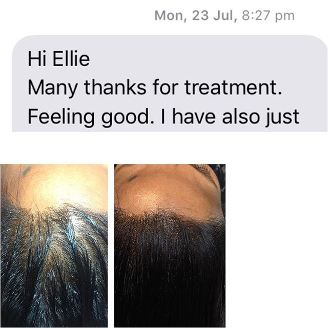 scalp micropigmentation review