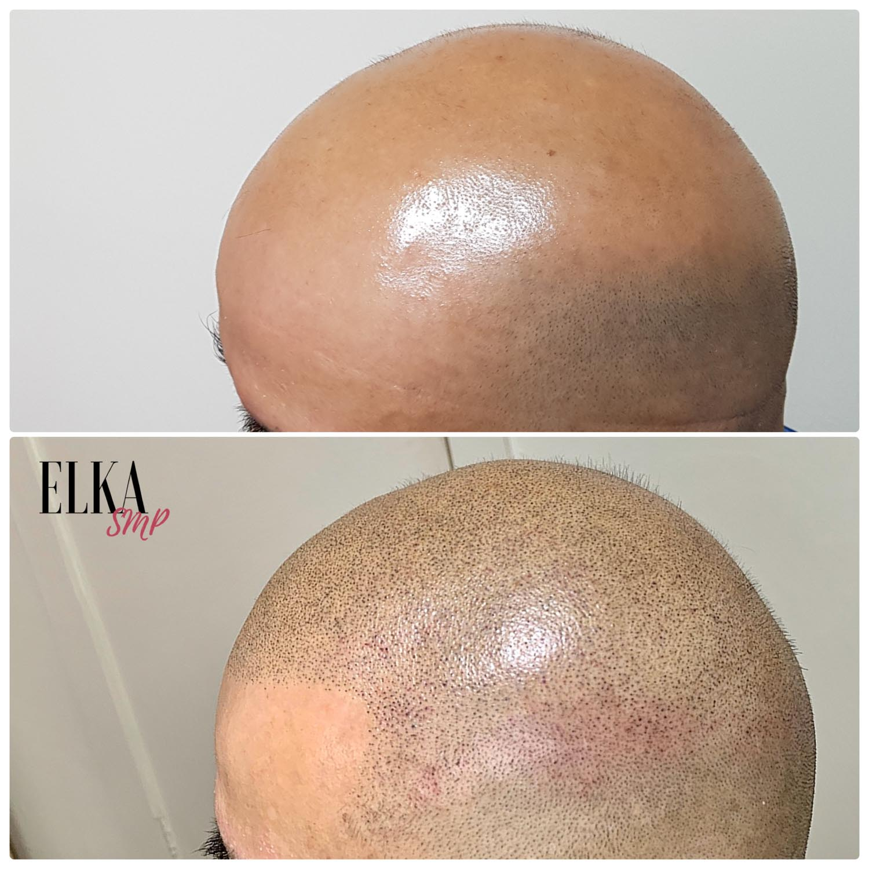 Scalp Micropigmentaion for Baldness