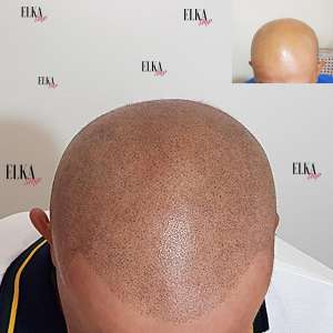 Scalp Micropigmentation for Baldness