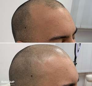 SMP Forbaldness in Hairline Area
