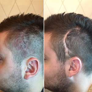 SMP Hairloss Scar Coverage for Brain Surgery Scar