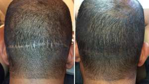 Hair Transplant Scar Coverage by Hair Tattooing