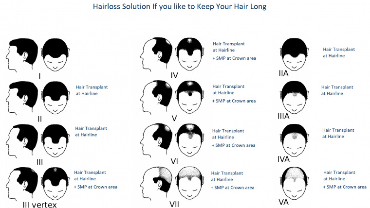 Hair Tattooing VS Hair Transplant. Which one is for me?