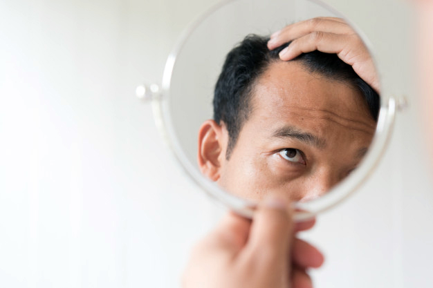 The ultimate guide to non-surgical hair loss treatments