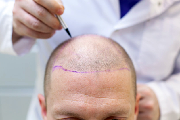 Get to know Surgical hair loss treatments