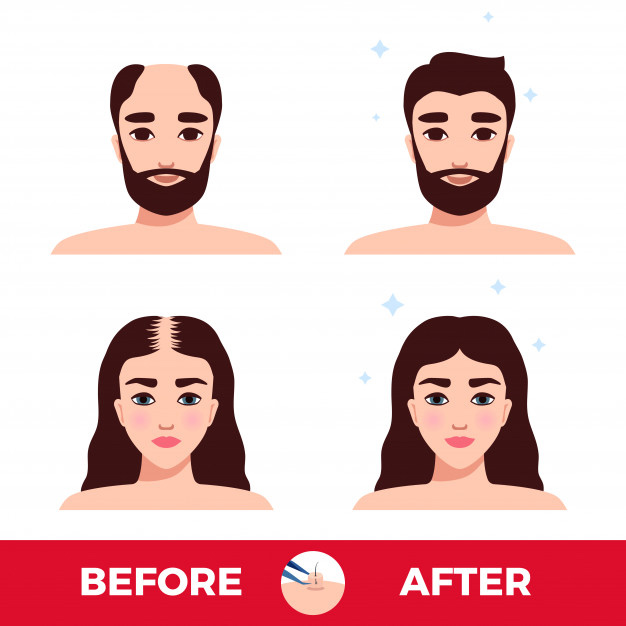 different patterns of hair loss in each sex