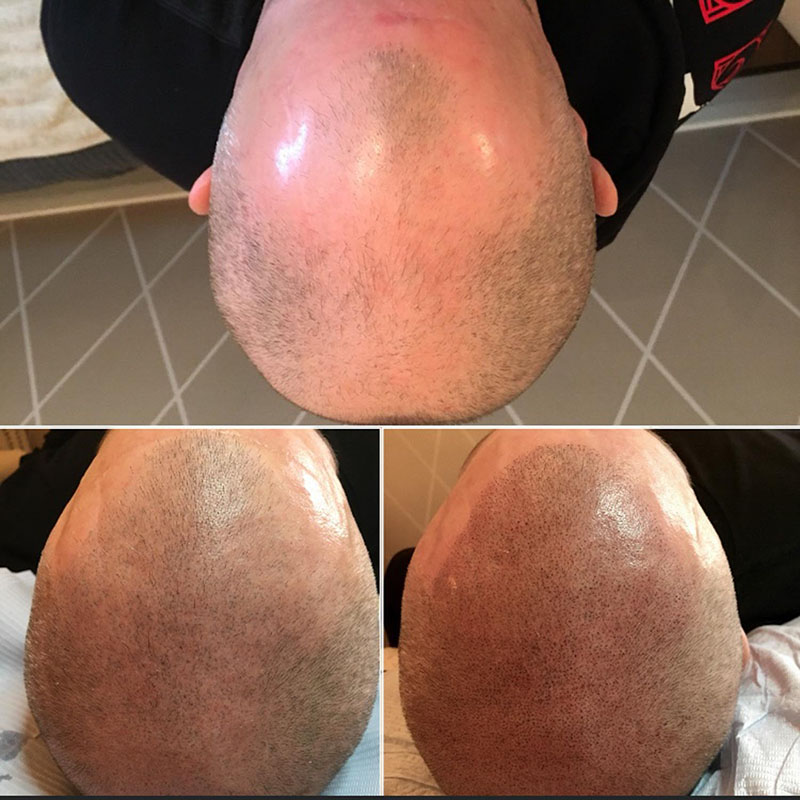 Healing stages of scalp micropigmentation healing process