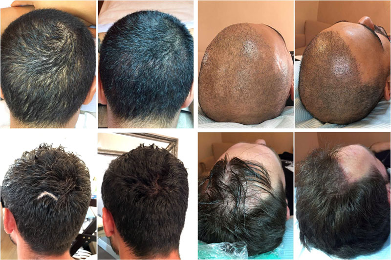 purpose and result of non-invasive hair loss treatment methods