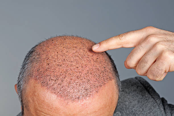 result of surgical hair loss treatments