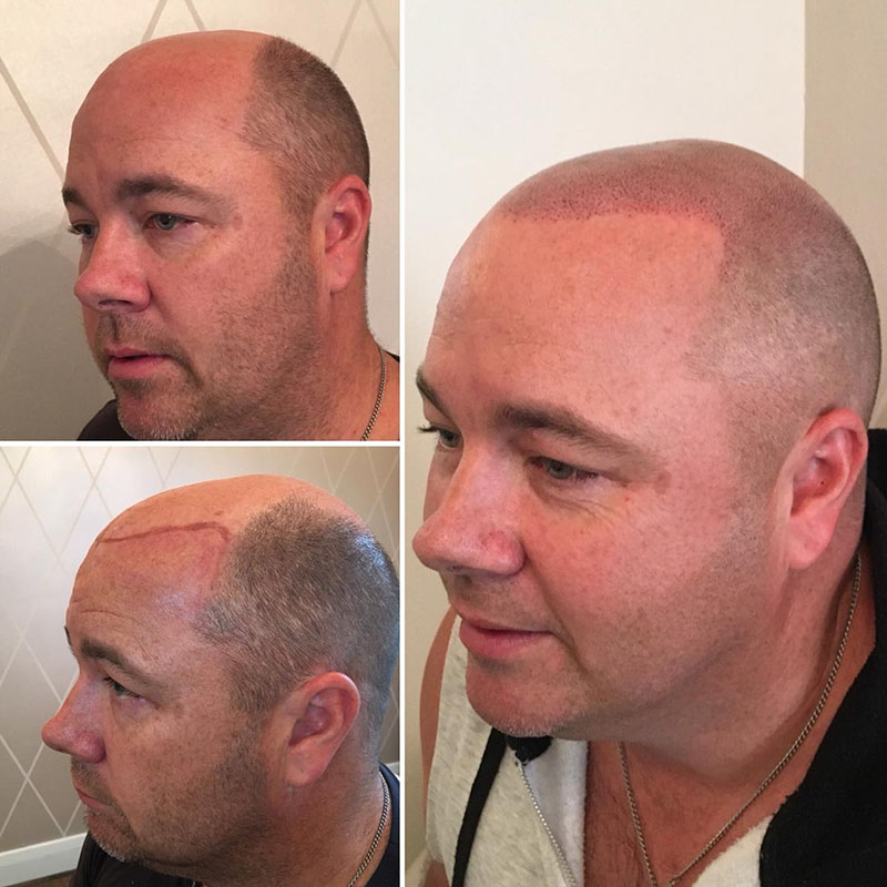 the scalp micropigmentation recovery period
