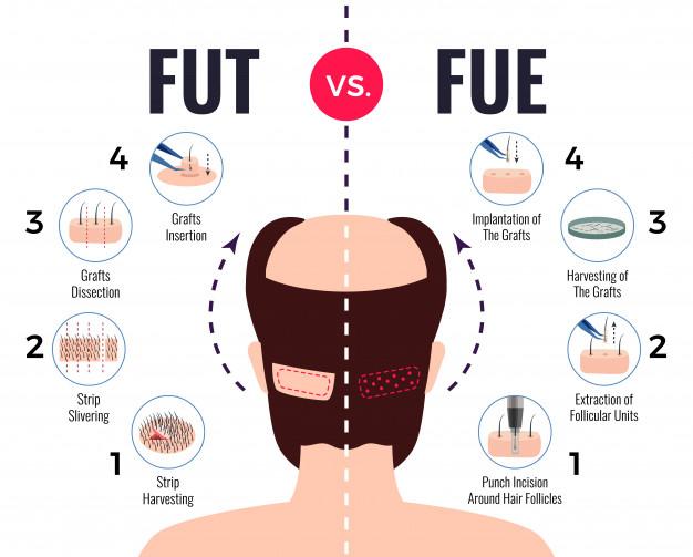 Follicular Unit Transplantation (FUT) vs Follicular Unit Extraction (FUE)