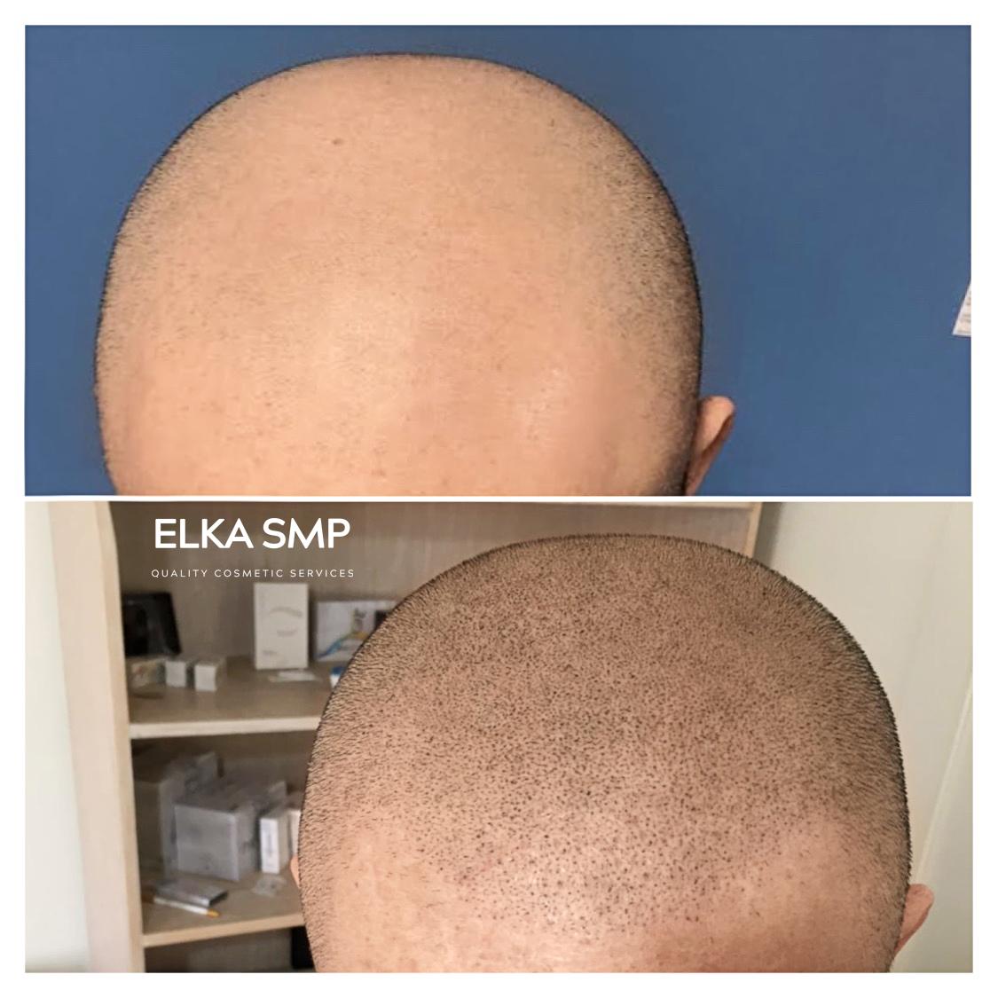 Scalp Micropigmentaion Baldness