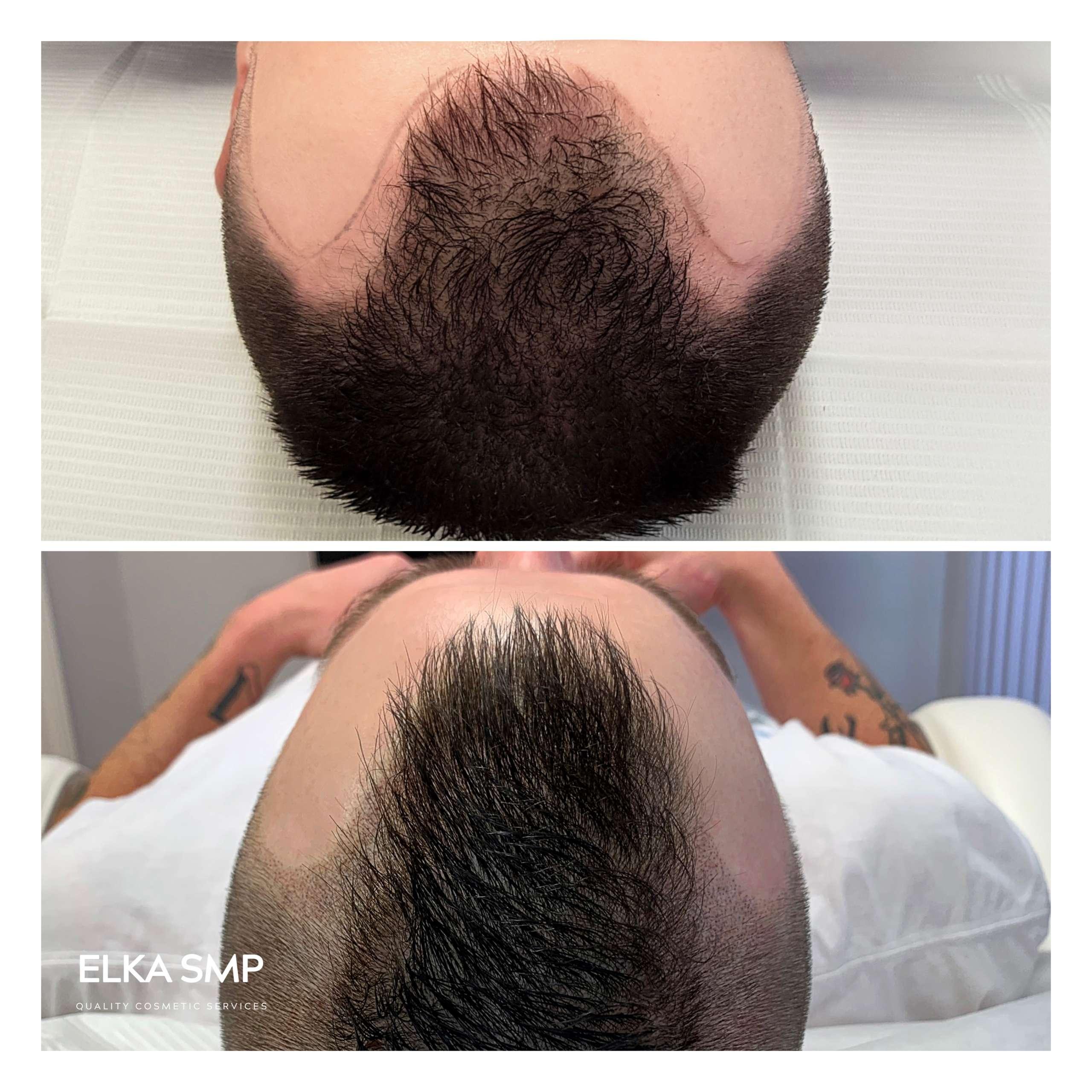 Scalp Micropigmentation Receding Hairline