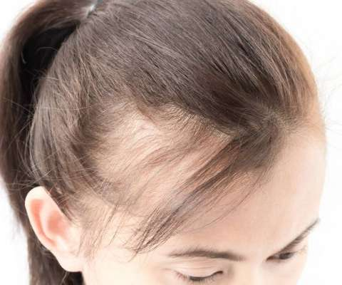 Scalp Micropigmentation for Thinning hair