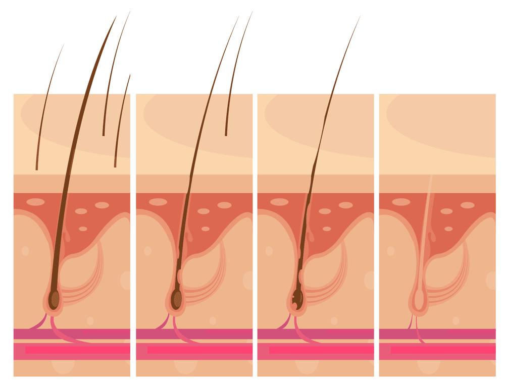 hair loss steps