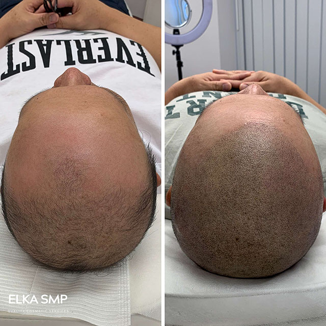 scalp micropigmentation (SMP) as an efficient treatment for hair loss and receding hairline