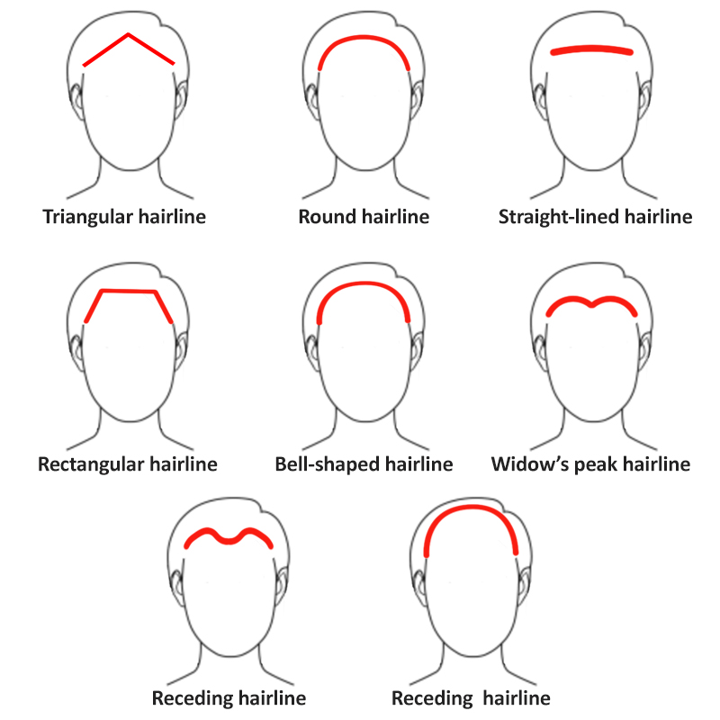 male and female receding hairline types