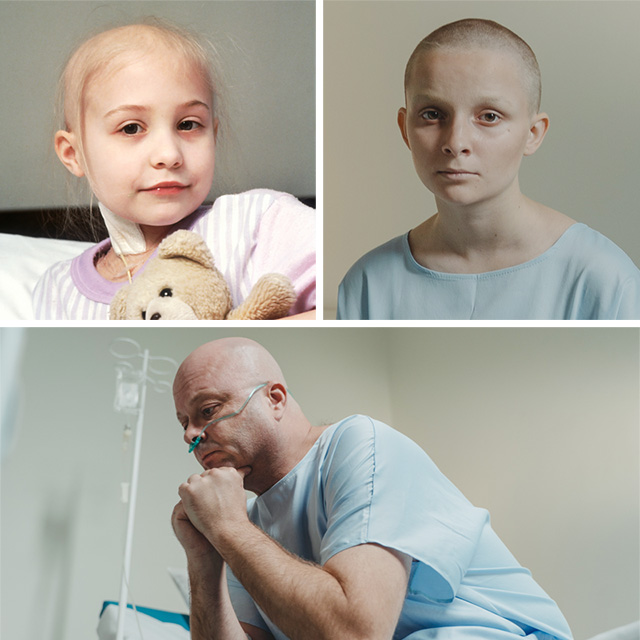 cancer chemotherapy hair loss