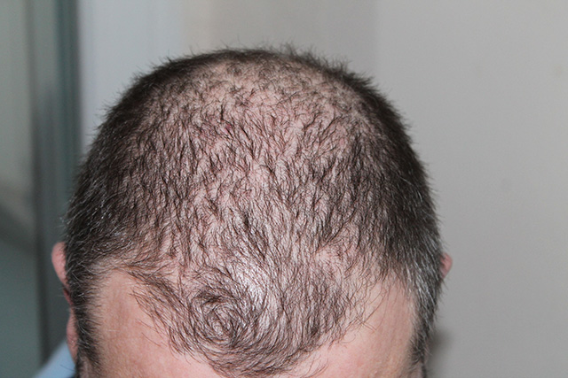 receding hairline causes and treatments
